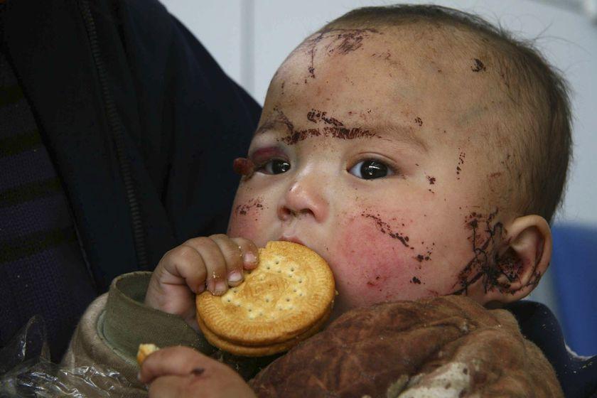 Il piccolo Tenzin con le ferite causategli dal terremoto.