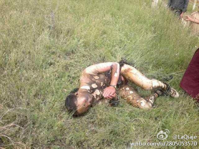 Il corpo di Dolkar martoriato dalle ustioni